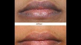 Cómo aclarar los labios oscuros - Anastassia Sfeir thumbnail