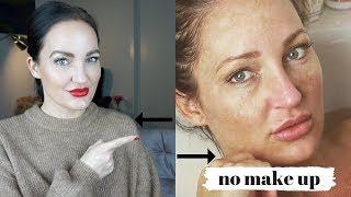 Wie Du Akne und Pickel SOFORT los wirst !! | Dipl. Kosmetikerin erzählt...