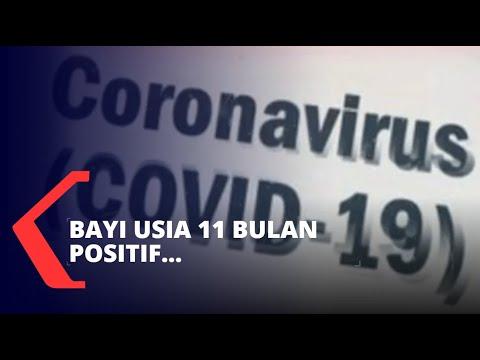 Bayi Umur 11 Bulan di Lampung Positif Corona