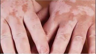 CCJ admite data alusiva a vitiligo em SC