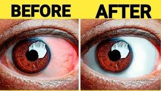 आंखों का लाल होना ,पानी निकलना, कमजोरी होना, दर्द करना, आंखों में खुजली ,सूजन को 1 बार में खत्म करें