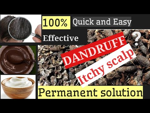 how-to-get-rid-of-dandruff-&-itchy-scalp-permanently-and-naturally-at-home.