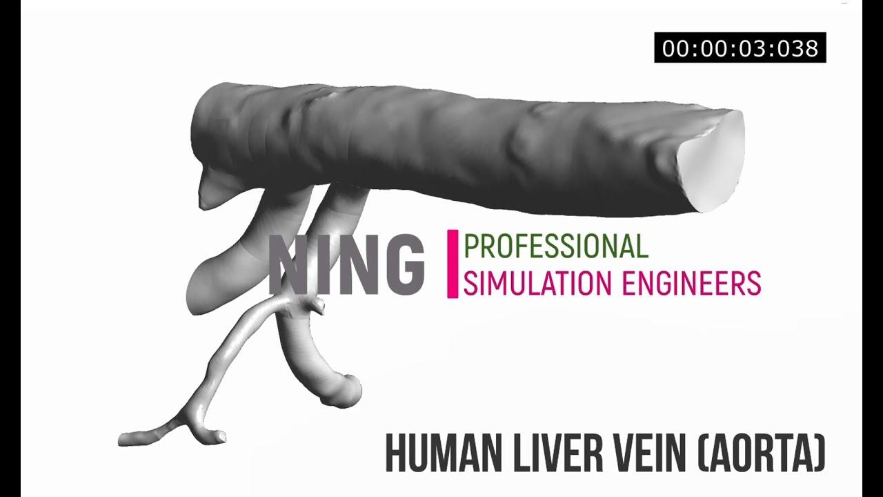 Biomechanics simulation of human aorta