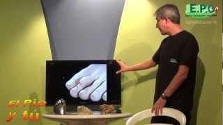 Podología EPC: El pie y tú - Capítulo 1 - Dedo en Martillo