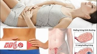 Người bị u nang buồng trứng có mang bầu được không? | VTC