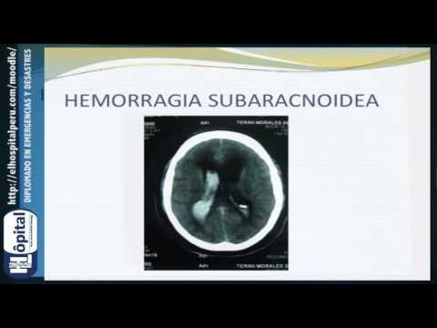 Manejo Del Paciente Con AVC: Hemorragia Subaracnoidea.