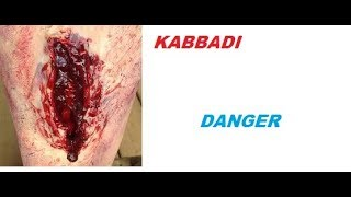 PROkabbadi accident   Raider Leg twist In a Second and he suffering from lot of leg pain