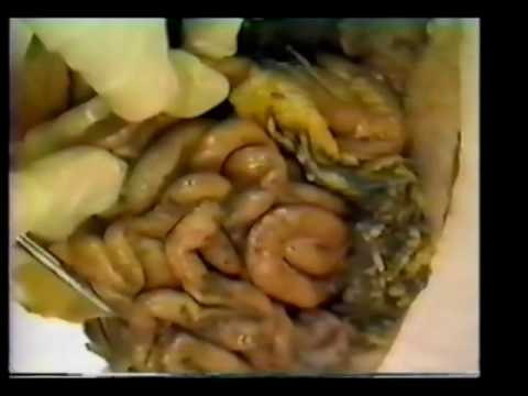 Internal Organs I - Part 2 - YouTube