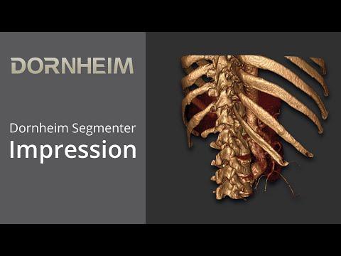 Dornheim Segmenter Impressions