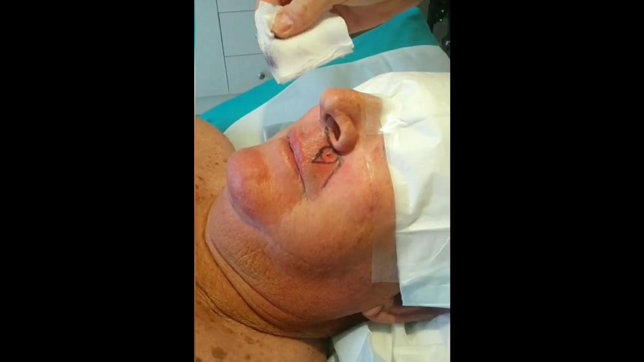 Sex picture facial skin flap repair pictures