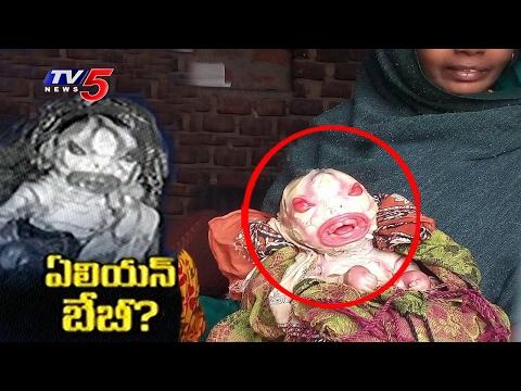 Alien Baby Born In Bihar | Woman Gave Birth To Alien Like Baby | Unbeleivable Facts | TV5 News