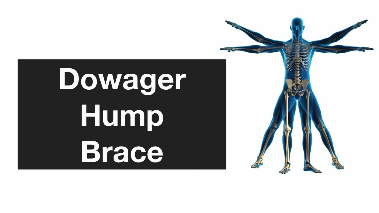 how to get rid of dowager s hump