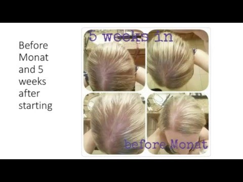 aea5ae5db9a MONAT before and after photos - YouTube