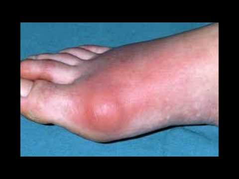 what-is-the-best-medicine-for-gout-arthritis