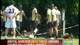 Baixar Edwards Jiménez, sufrió 3 fracturas en la cara por una patada de Efraín Viáfara