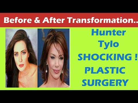 Hunter Tylo Plastic Surgery Before and After Full HD
