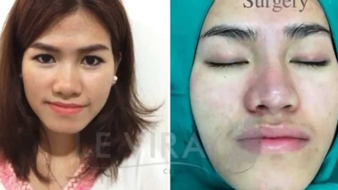 pastic surgery cause and effect