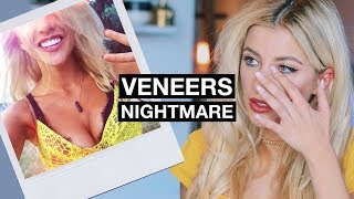 My Horrific Experience With Veneers | The Truth