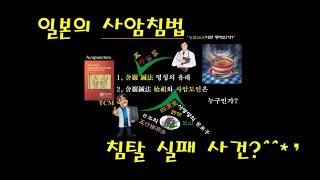 0477: 일본의 '사암침법' 침탈 실패 사건