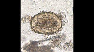 Pinworm ascariasis