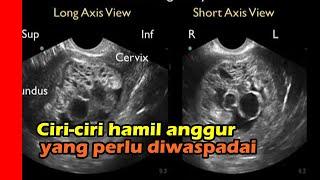 KEHAMILAN ANGGUR (MOLAR PREGNANCY).