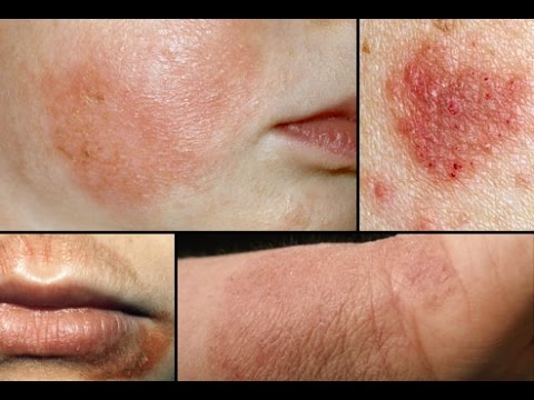 how to Cure Eczema Easily !!