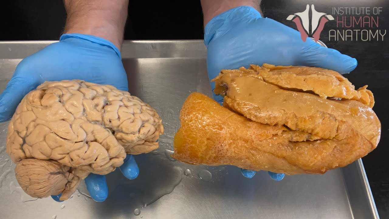 Is Your Brain Really Made of FAT?