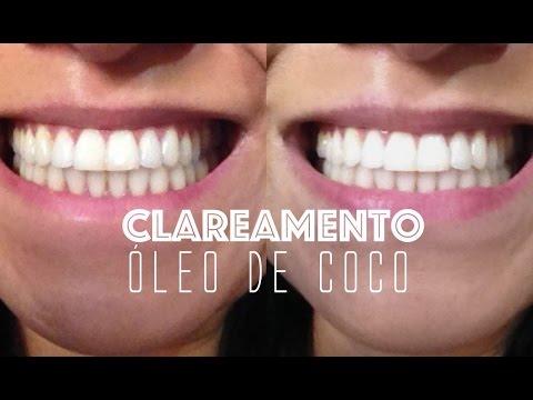 Como Clarear Os Dentes Com Oleo De Coco Youtube