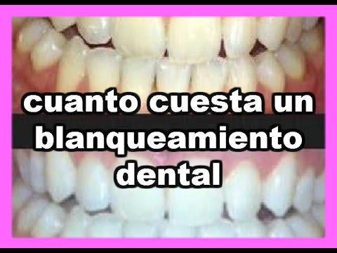 sabes cuanto cuesta un blanqueamiento dental youtube
