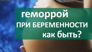 видео Геморрой при беременности