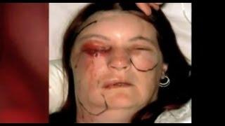 Flesh Eating Bug Ate My Eye (Part 1) - Bizarre ER