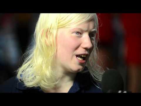 Nuoto e albinismo
