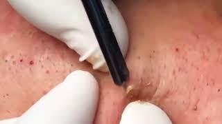 Удаление чёрных точек на лице Лечение акне Как убрать черные точки Прыщи на лице