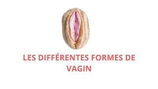 LES DIFFÉRENTES FORMES DE VAGIN