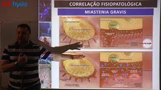 Fisiopatologia da Miastenia Gravis