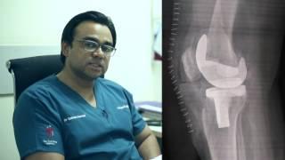 Dr Salman Durrani Orthopaedic Surgeon ,Knee Replacement , Delhi