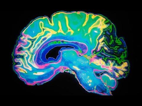 Epidural Steroid Injections / FDA Issues Gadolinium MRI Contrast Alert!