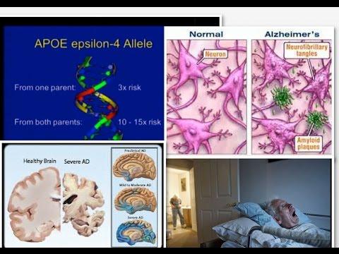 Alzheimer's Disease: Prevention & Treatment