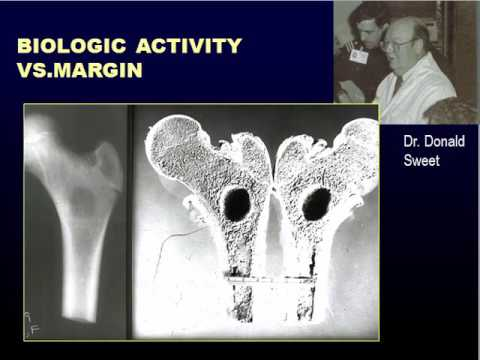 Radiographic Approach To Bone Lesions, Part I