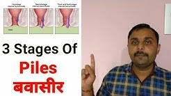 Stages Of Hemorrhoids | Grade 1,2 & 3 Hemorrhoids | What is Piles