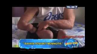 On The Spot - Bahaya Penyakit Meningitis