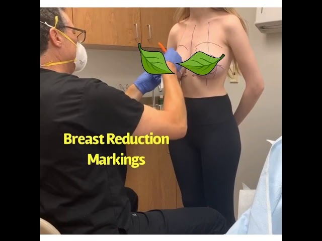 Breast Reduction Markings