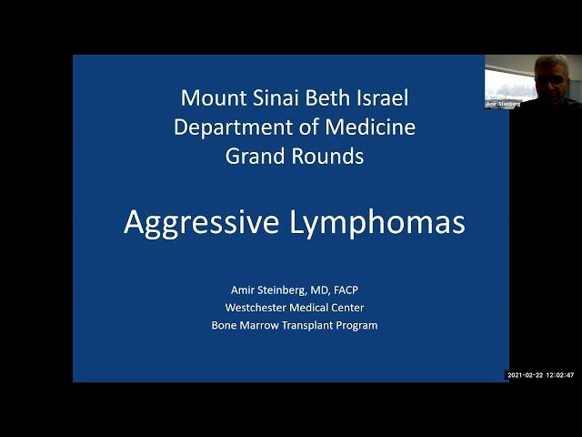 Aggressive Lymphomas