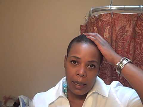 Hair Regrowth Check In 3