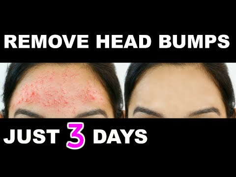 How To Get Rid Of Red Bumps On Arms Naturally