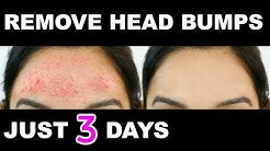 hqdefault - Small Pimples On Forehead Home Remedies
