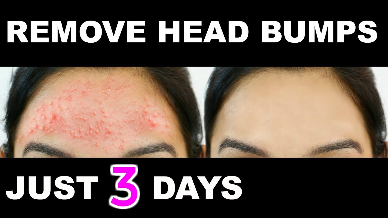 How To Get Rid Of Small Pimples Fast