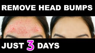 How Get Rid Small Pimples Head Ps Fast Naturally