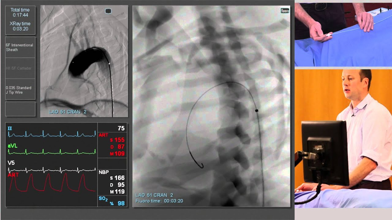 Aortography definition and meaning | Collins English ...