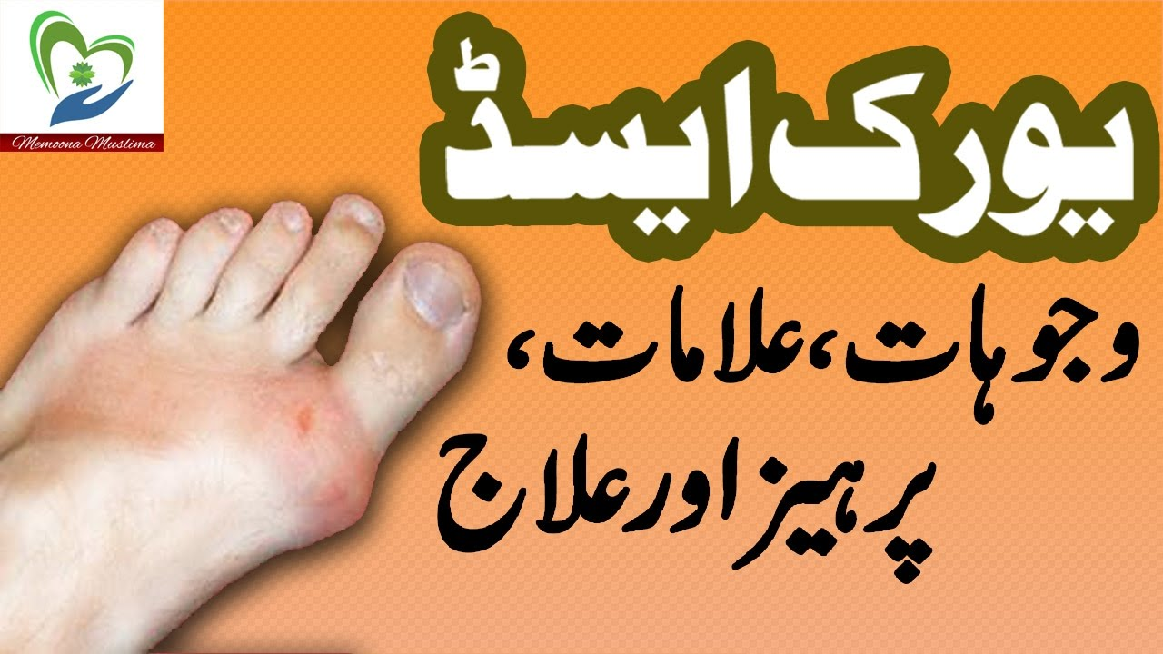 Uric Acid Treatment And Symptoms In Urdu Health And Beauty